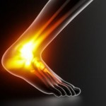 Why RICE Treatments May Not Be the Answer for Ligament Sprains
