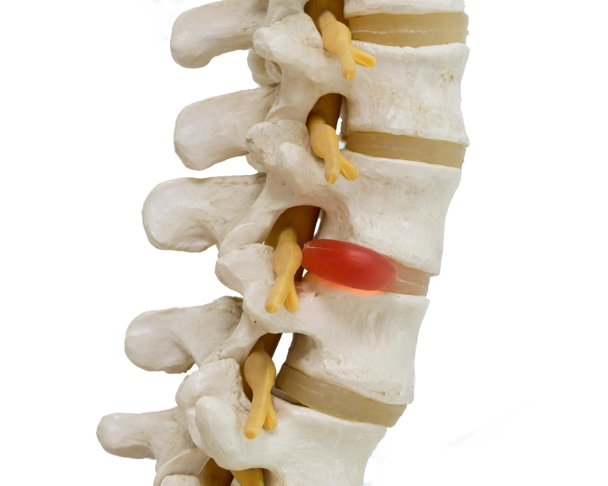 spine herniated disc
