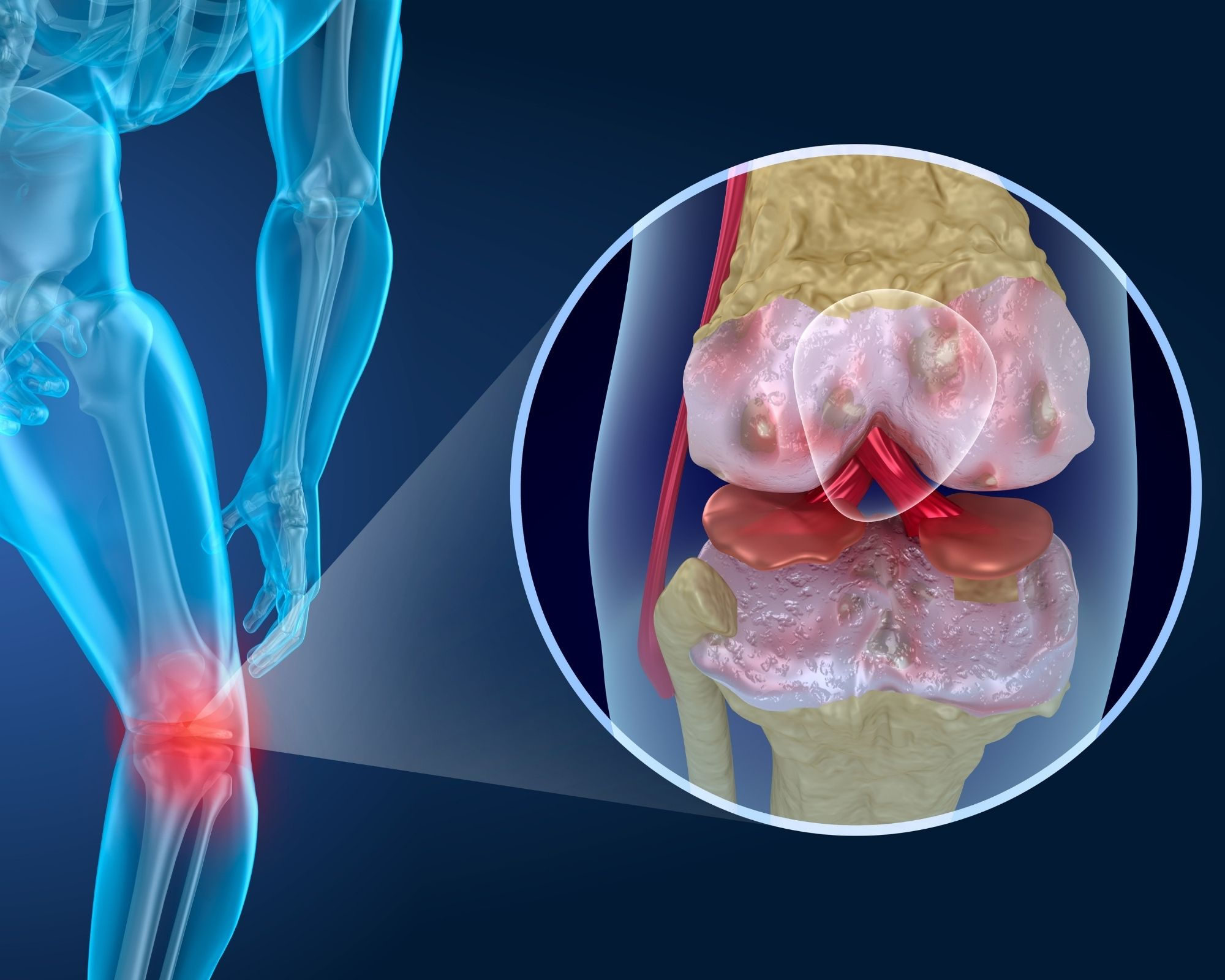 Knee Cartilage - Nutrients are needed to repair this