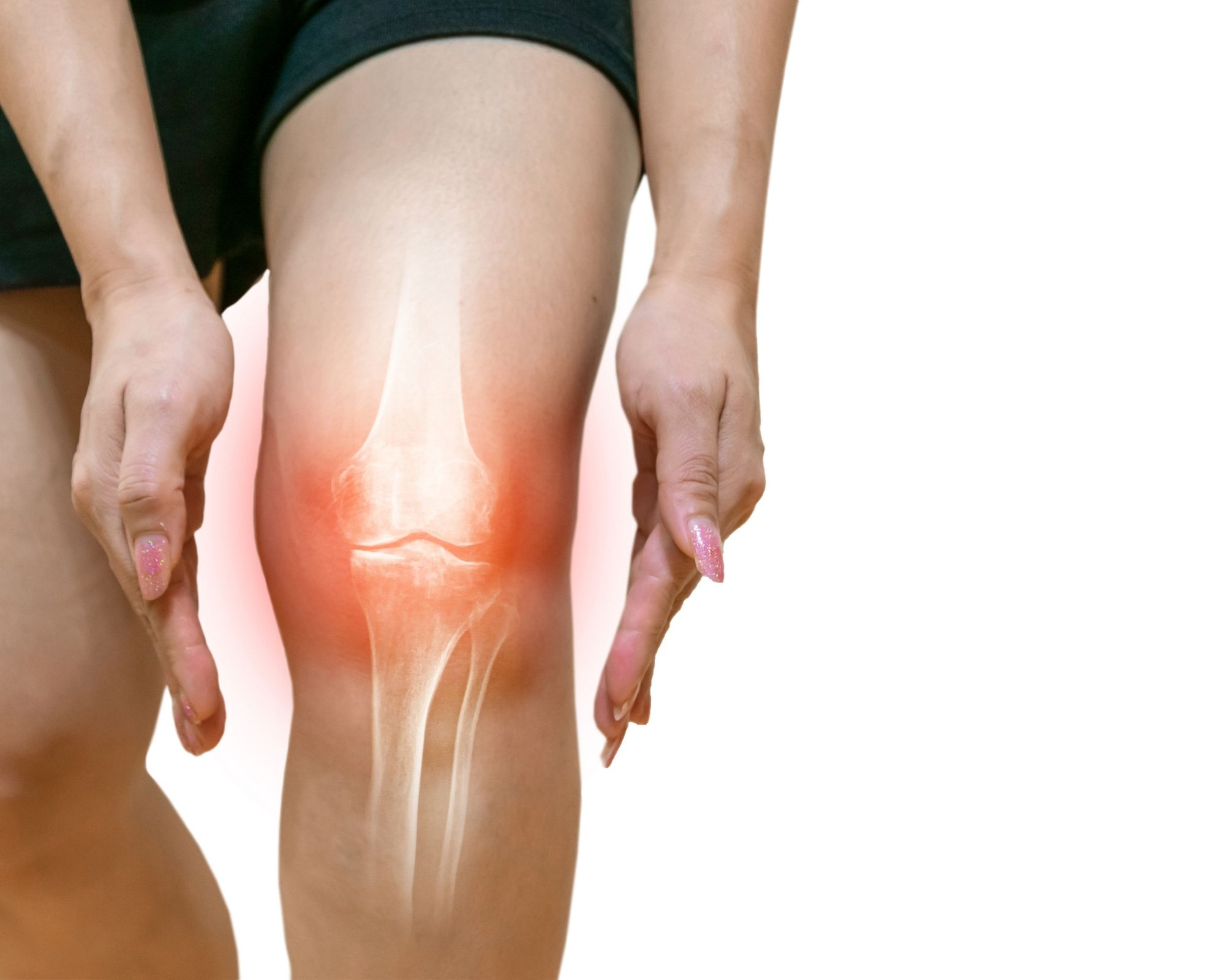 Knee highlighted in red to indicate pain from Osteoarthritis - Curcumin can help relieve the pain
